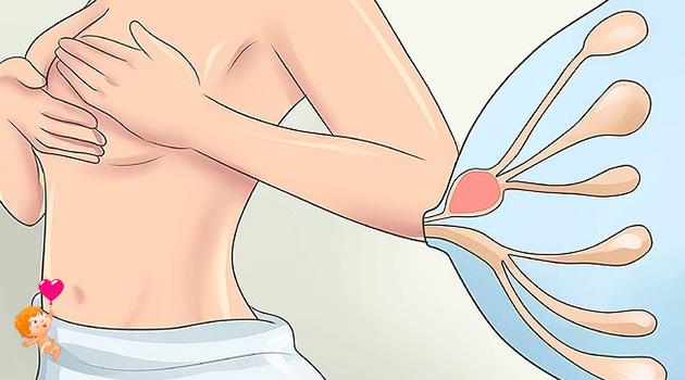 лактостаз у кормящей лечение